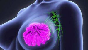FDA: droga viva para niños, jóvenes y adultos con cáncer 0