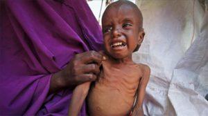 Hambruna: enfrentará la peor hambruna de la historia 0