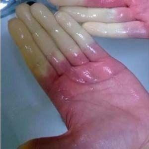 Los cambios de color en los dedos son síntomas de la Enfermedad de Raynaud