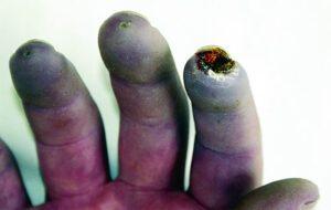 Raynaud: los cambios de color en los dedos son síntomas 0