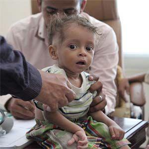 El brote de cólera de Yemen ha superado los casos sospechosos registrados en Haití