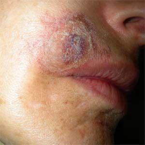 Millones de personas en todo el mundo sufren la enfermedad de Morgellons