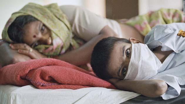 La peste negra libro: 1.300 casos de Peste Negra confirmados