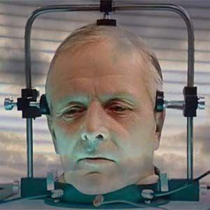 Se espera un informe completo del trasplante de cabeza humana