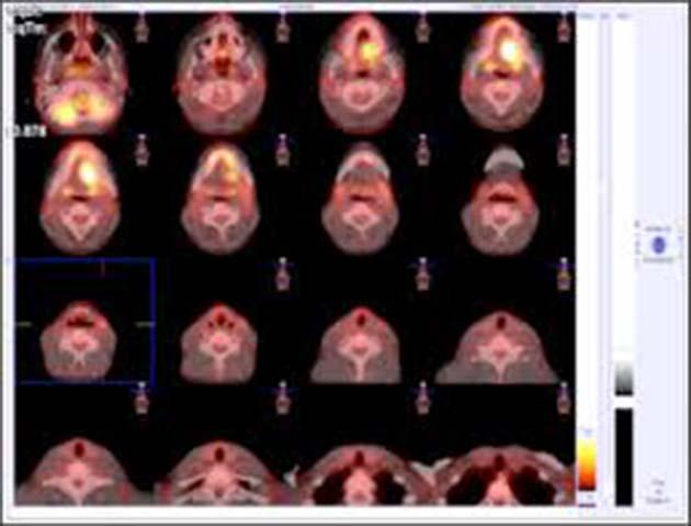 Tratamientos 0 no discrimina células sanas y cancerosas