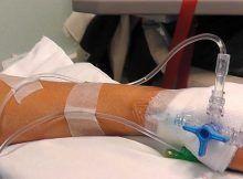 precio tratamiento quimioterapia, turbantes quimioterapia.