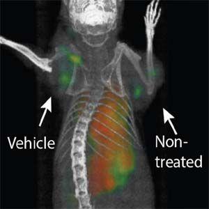 Eltratamientoutiliza el sistema inmunitario del cuerpo para combatir los tumores