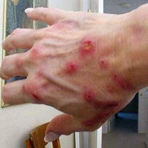 Investigador encuentra que todo el mundo tiene la enfermedad de Lyme