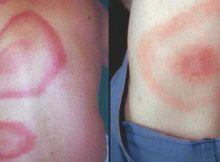 enfermedad de lyme tratamiento pdf, lyme diagnostico.