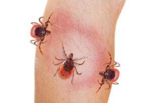 Lyme: todo el mundo tiene la enfermedad de Lyme 0