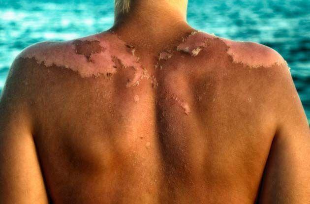 manchas asperas en la piel.