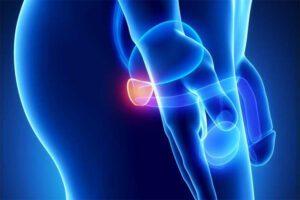Nanopartículas : utilizadas en  procedimientos médicos 0