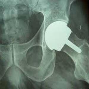 Los metales tóxicos de implantes de reemplazo de cadera pueden provocar alzheimer