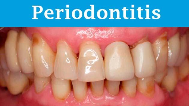 Limpieza dental: 1 la calidad de la limpieza evita enfermedades