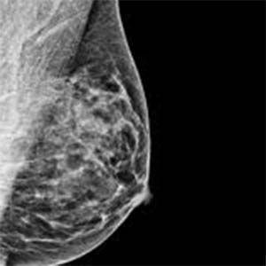 La mamografía, es dañina para detectar el cancer de mama