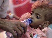 La hambruna en Yemen es la peor hambruna del mundo - 13 millones podrían morir