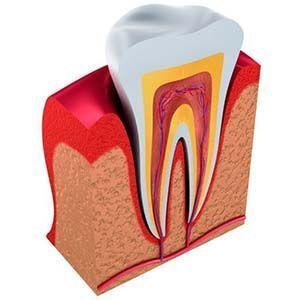 Implantes odontologicos: reparar los dientes dañados naturalmente
