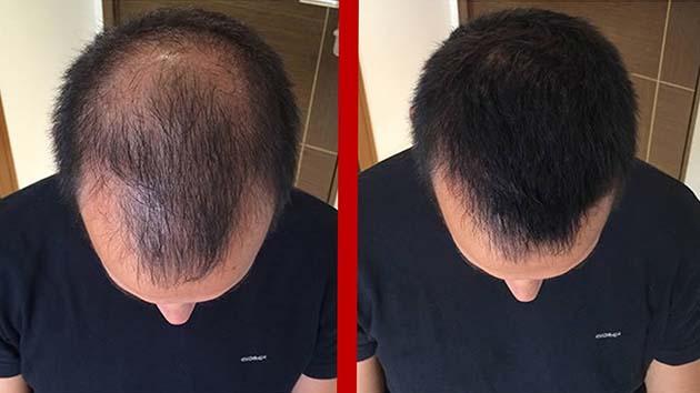 Pérdida de cabello: la ingesta de omega 3 y 6 y antioxidantes lo reduce