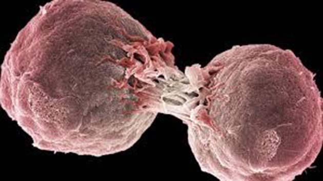 El cancer se cura: 1 existen varios tipos de tratamiento