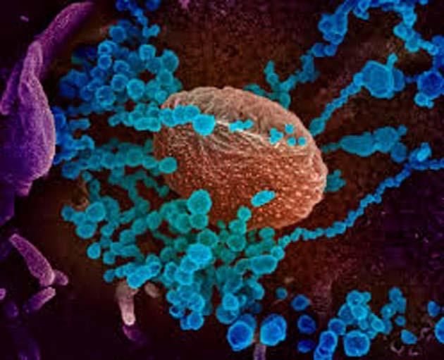 Epidemiologia: COVID-19 tasa de mortalidad del 2 por ciento