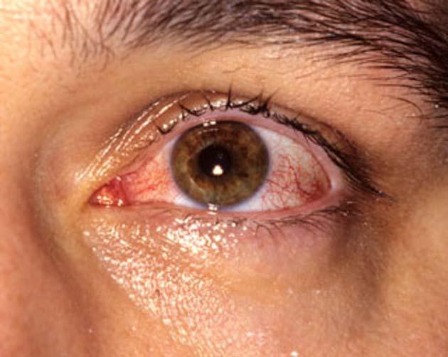 Conjuntivitis 0 vista en casos sintomáticos y asintomáticos