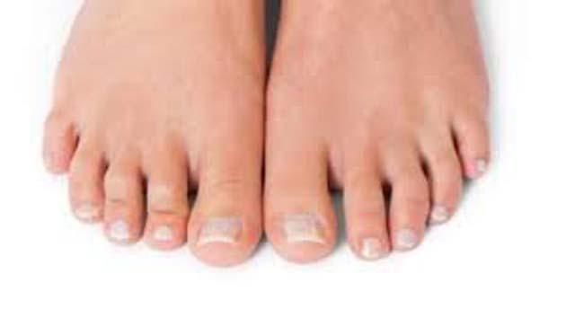 Llagas: en los pies pueden ser un síntoma de COVID-19