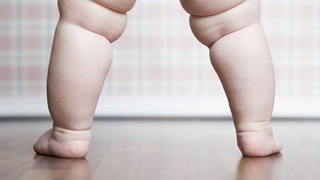 La obesidad infantil empeora por la cuarentena 1
