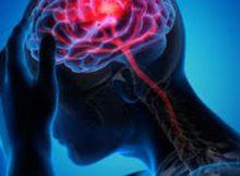 Neurológicas: pacientes hospitalizados con COVID-19