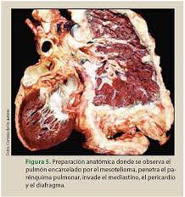 Mesotelioma pleural: tarda de 20 a 50 años en desarrollarse