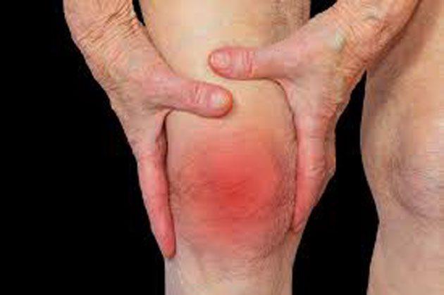 00  Tratamiento para artritis reumatoide: articulaciones  00
