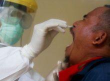 Hisopado nasal: una mujer pierde líquido cerebral 0