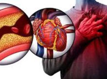 Salud cardiovascular: niveles de colesterol un marcador 0