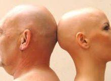 00 Tratamiento para la alopecia areata: caída cabello 00