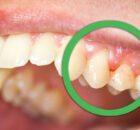 Gingivitis: forma leve de enfermedad de las encías 00