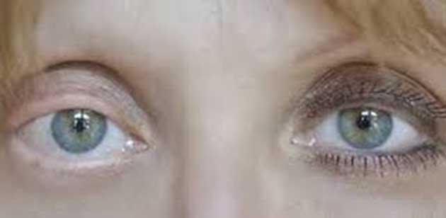 00 Cabello: hasta ahora 1700 personas sufren alopecía 00